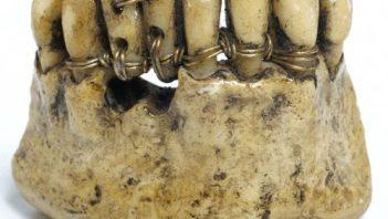 First dentures