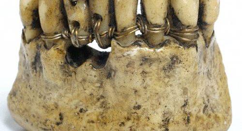 Pierwsze protezy zębne