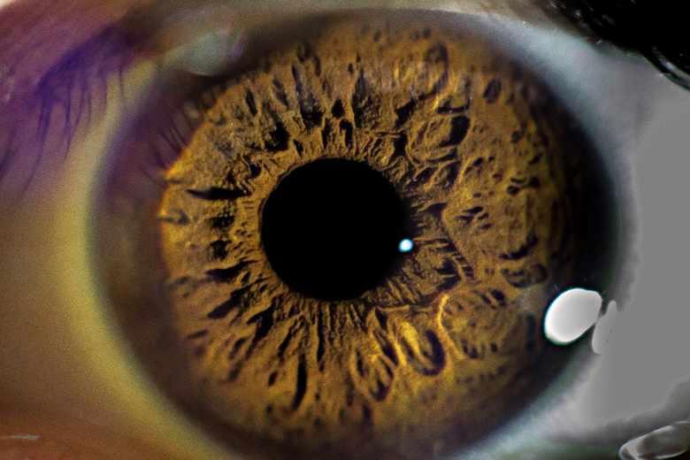 Zaćma oczu w czasach Rzymian