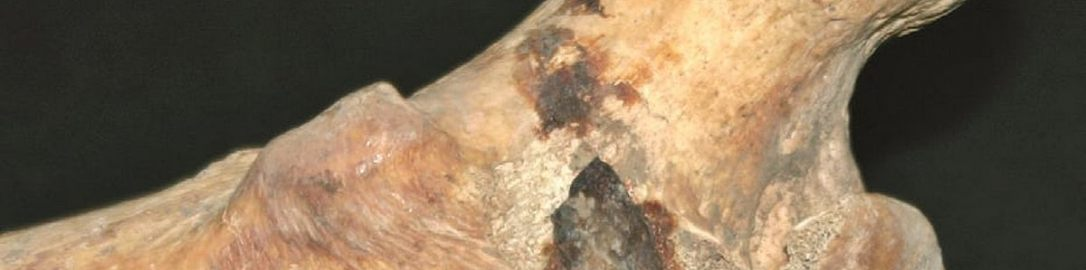 Roman soldier's bone with arrowhead